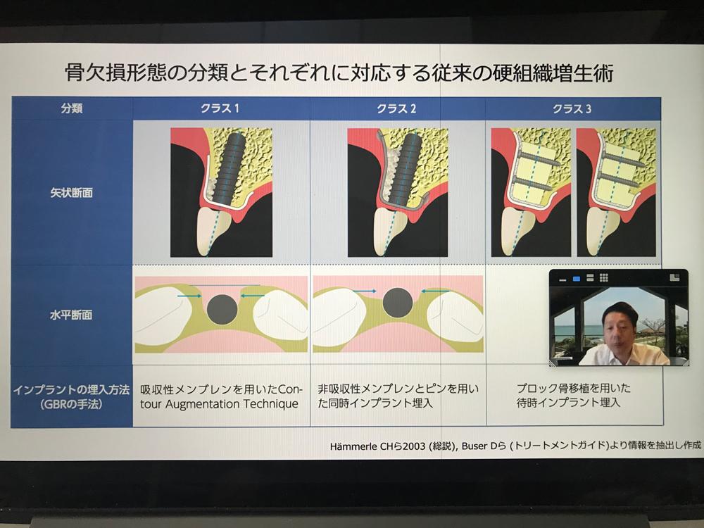 2021年度第5回日本臨床歯科学会福岡支部学術講演会